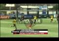 Atacante do Boca Juniors lesiona-se na cara durante treino