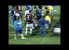 Jogador brasileiro mordido por um cão