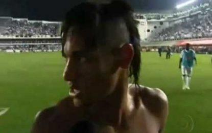Neymar leva com câmara na cabeça