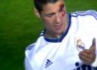 Cristiano Ronaldo leva cotovelada no olho
