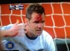 Jogador da Nova Zelândia sofre entrada assassína