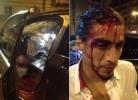 Martín Cáceres envolvido em violento acidente