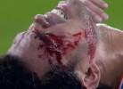 Pepe sofre golpe assustador no sobrolho